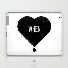 When Laptop & iPad Skin