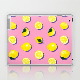 Pink Lemon ~ 80's Pattern Laptop & iPad Skin