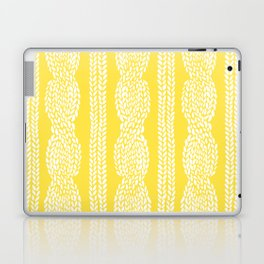 Cable Row Yellow Laptop & iPad Skin