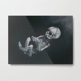Fetus Metal Print