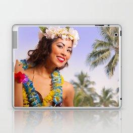 """Aloha"" - The Playful Pinup - Coconut Shell Bikini Pinup Girl by Maxwell H. Johnson Laptop & iPad Skin"
