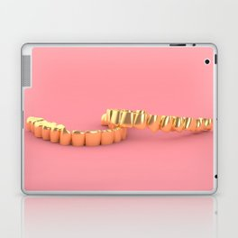 Grillz Laptop & iPad Skin