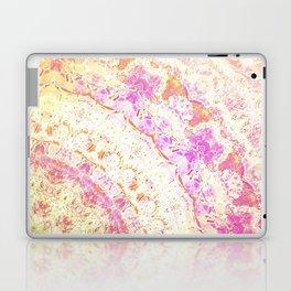 ANTIQUE HANDKERCHIEFS Laptop & iPad Skin