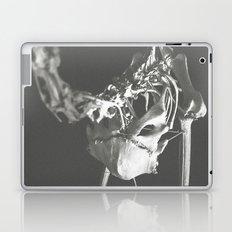 Carcass, 01 Laptop & iPad Skin