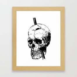 The Skull of Phineas Gage Vintage Illustration Framed Art Print