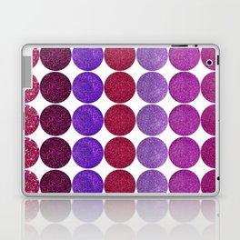 Cherry Sparkles Jubilee Laptop & iPad Skin