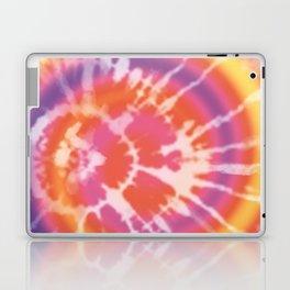 Tie-dye pattern Laptop & iPad Skin