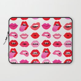Lips of Love Laptop Sleeve