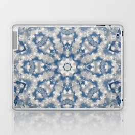 Find Your Cloud Laptop & iPad Skin