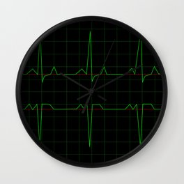 Normal Heart Rhythm Wall Clock