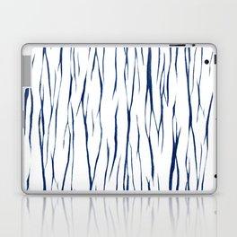 Shibori four Laptop & iPad Skin