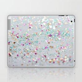 Surprise Party  Laptop & iPad Skin