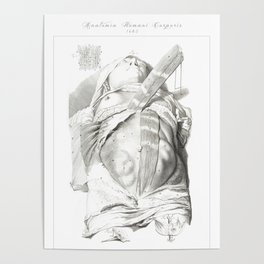 Human Anatomy Art Print BELLY BUTTON SKINNED Vintage Anatomy, doctor medical art, Antique Book Plate Poster