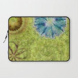 Empurples Mental Picture Flower  ID:16165-094016-44020 Laptop Sleeve