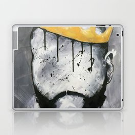 Naturally King Laptop & iPad Skin