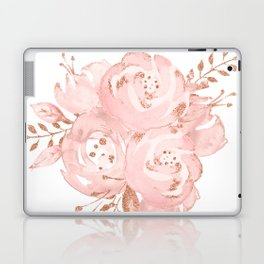 Roses Rose Gold Glitter Pink by Nature Magick Laptop & iPad Skin