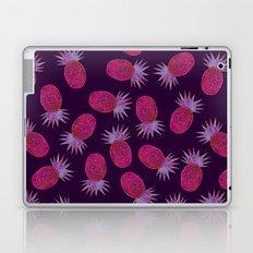 Chevron Pineapple - Purple Laptop & iPad Skin