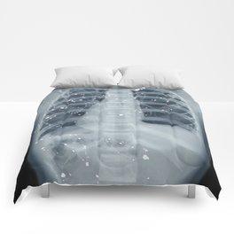 Situs Inversus Comforters