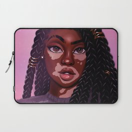 VitiligoQueen Laptop Sleeve