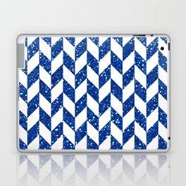 Herringbone Blue Glitter 01 Laptop & iPad Skin