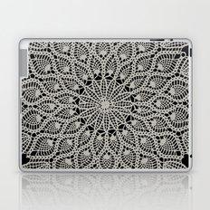 Delicate - Silver Laptop & iPad Skin