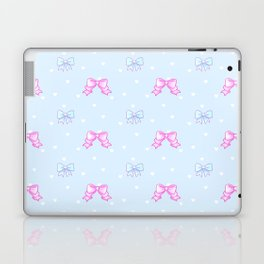 Bowsie wowsie Laptop & iPad Skin