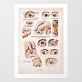 Eye health Art Print