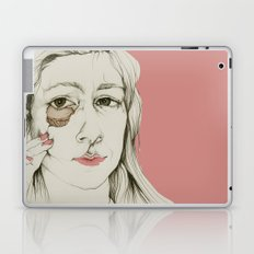 Sueños rotos Laptop & iPad Skin