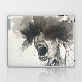 The Pain of Cluster Headaches Laptop & iPad Skin