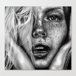 + FRECKLES + Canvas Print