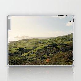 Ring of Kerry Laptop & iPad Skin