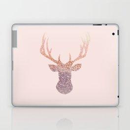 ROSEGOLD DEER BLUSH Laptop & iPad Skin