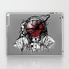 Space Parasitism Laptop & iPad Skin
