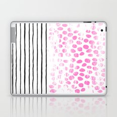 Dot Stripe hot pink black and white minimal abstract painting pattern trendy boho urban bklyn art Laptop & iPad Skin