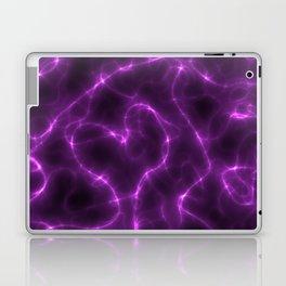 love is electric Laptop & iPad Skin