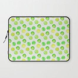Tennis Balls / Watercolor Pattern / Ace / Serve Laptop Sleeve