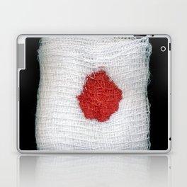 Bloodstained Gauze Laptop & iPad Skin