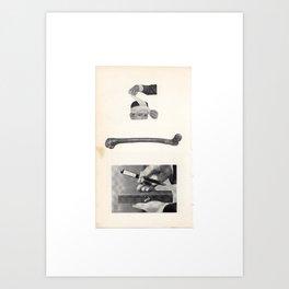 Bonedaggerdamage Art Print