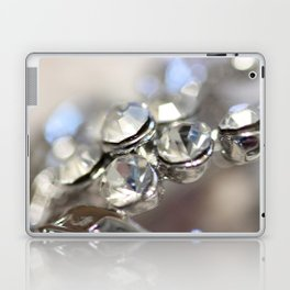 Sparkle - JUSTART ©, macro photography. Laptop & iPad Skin