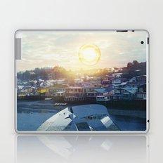Intervention 45 Laptop & iPad Skin