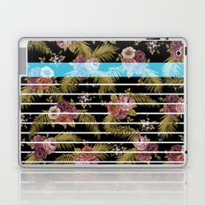 BOTANICAL STRIPES D01 Laptop & iPad Skin