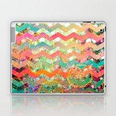 New World Chevron Spring Edition Laptop & iPad Skin