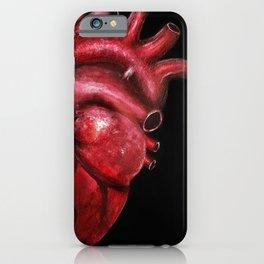 Why I aorta (II) iPhone Case