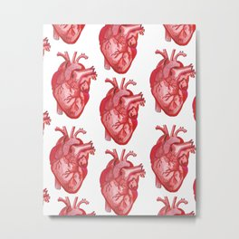 Open Heart Surgery Metal Print
