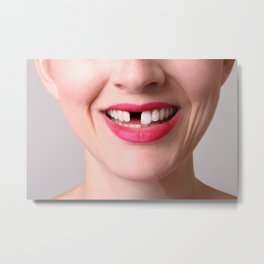Missing Tooth Metal Print