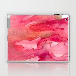 Infected Heart  Laptop & iPad Skin