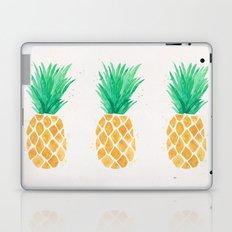 Watercolor Pineapple Laptop & iPad Skin