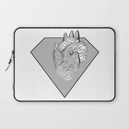 Super Heart Laptop Sleeve