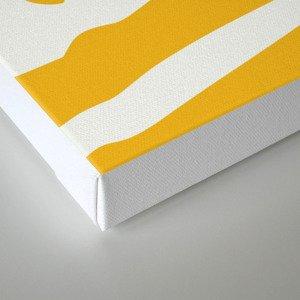 Yellow anatomy Canvas Print