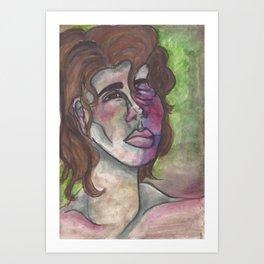 Swollen Art Print